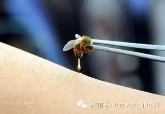 瘫痪女子被蜜蜂蜇1500次重新站立 !