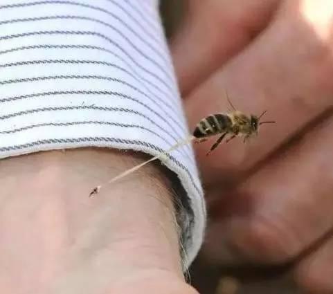 蜂毒治疗类风湿效果好