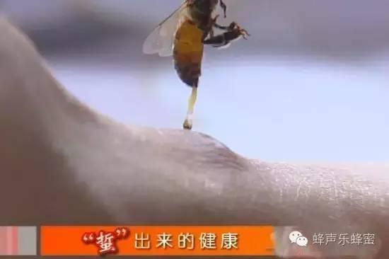 白醋洗脸 什么时候喝蜂蜜水最好 喝蜂蜜好吗 生姜蜂蜜祛斑 蜂蜜柠檬水