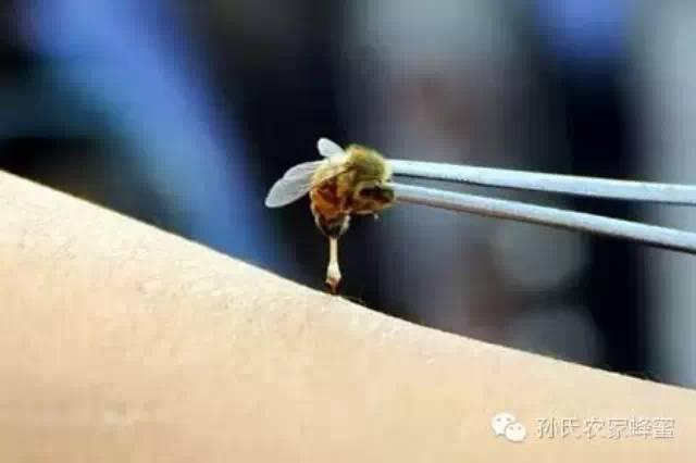 蜂蜜可以治疗鼻炎吗 红糖蜂蜜面膜功效 如何用蜂蜜祛痘 蜂蜜的吃法 最好的蜂蜜
