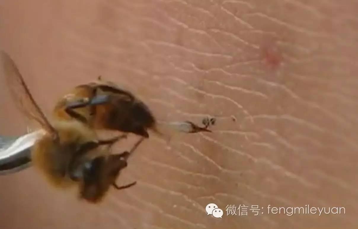 蜂疗效果好,肾病患者绝对值得一试!