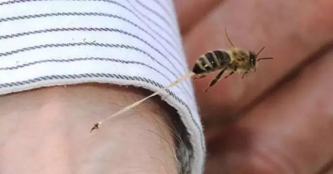 蜂毒治疗类风湿  药效奇好