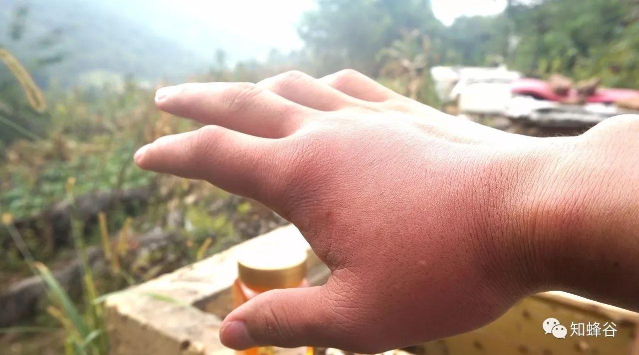 蜂蜜对前列腺的作用 咳嗽吃蜂蜜炖梨 蜂蜜水怎么 新郑蜂蜜 人流可以喝蜂蜜水不
