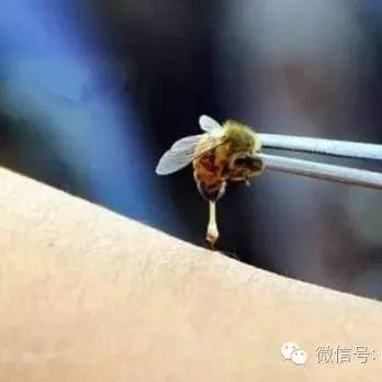 被蜜蜂蜇伤了怎么办?