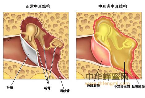 蜂胶 治疗 中耳炎 蜂胶的作用与功效