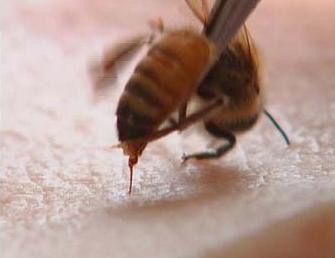 蜂毒 临床应用 蜂毒的作用 蜂毒疗法