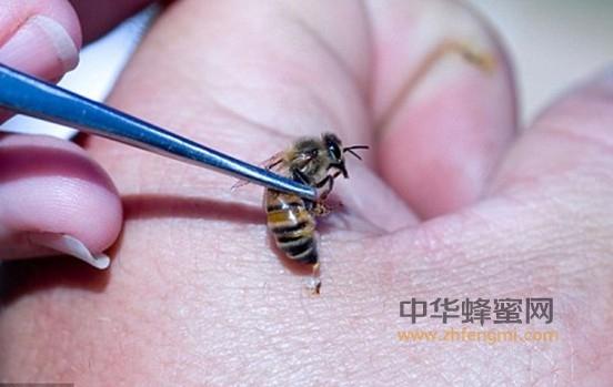 蜂毒 毒性 局部