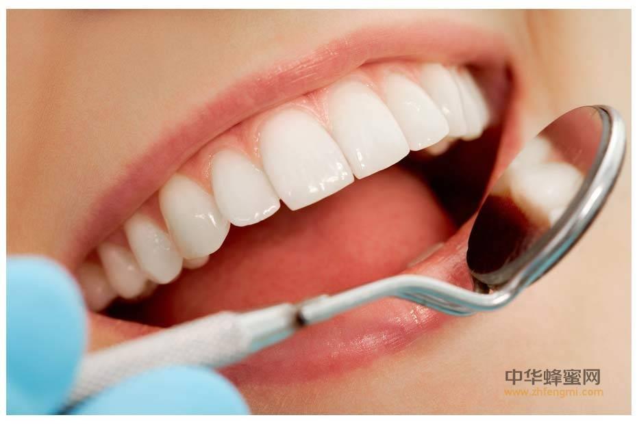 蜂巢 临床应用 治疗龋齿痛