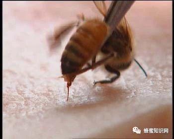 蜜蜂屁股上面那根刺,竟能治这么多病!神奇至极!!